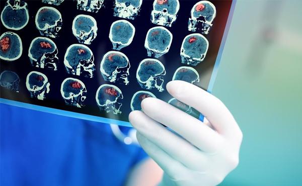 Especialidade de Neurologia